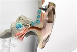 Die implantierte Hülse sitzt nur im Knochen. Die Prozedur dauert ca. 15 Minuten.