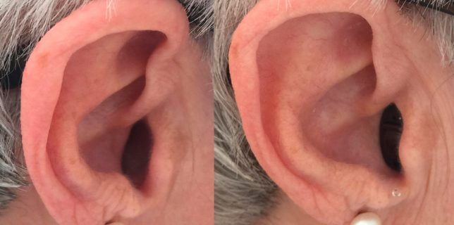 Links ohne In dem Ohr Hörgerät, rechts mit In dem Ohr Hörgerät