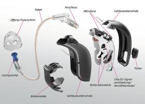 Auseinander genommenes Hörgerät